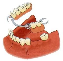 KG dental | Removable denture